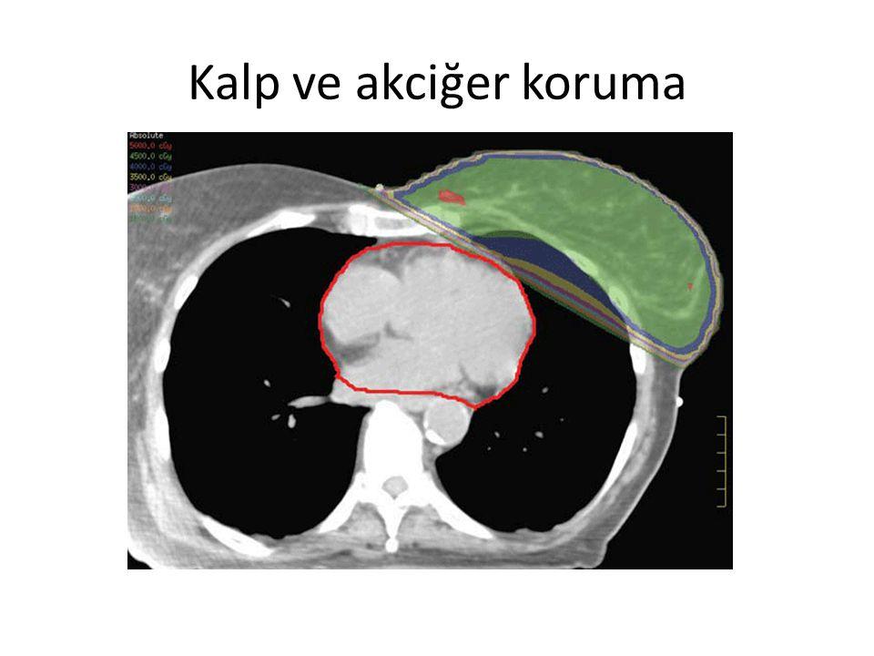 Kalp ve akciğer koruma