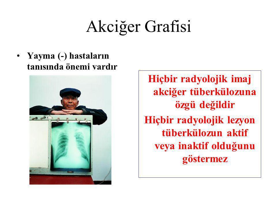 Akciğer Grafisi Yayma (-) hastaların tanısında önemi vardır Hiçbir radyolojik imaj akciğer tüberkülozuna özgü değildir Hiçbir radyolojik lezyon tüberk