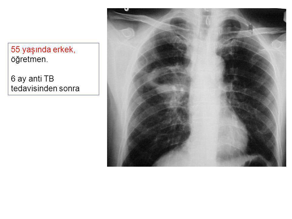 55 yaşında erkek, öğretmen. 6 ay anti TB tedavisinden sonra