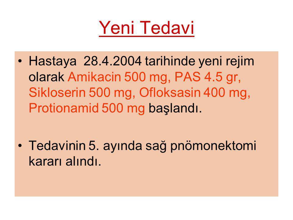 Yeni Tedavi Hastaya 28.4.2004 tarihinde yeni rejim olarak Amikacin 500 mg, PAS 4.5 gr, Sikloserin 500 mg, Ofloksasin 400 mg, Protionamid 500 mg başlan