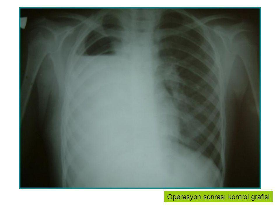 Stop TB Stratejisinin Temel Uygulamaları: Yüksek kalitede DOTS uygulamaların yaygınlaştırılması.