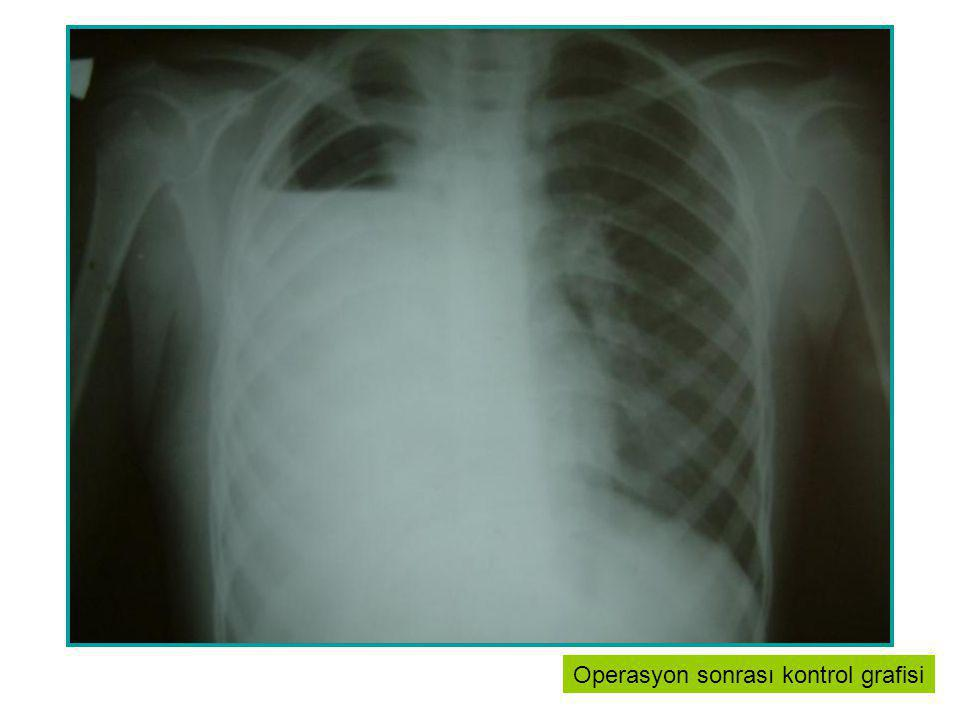 Yayma (+) Akciğer Tüberkülozu Yayma (-) Akciğer Tüberkülozu Akciğer Dışı Organ Tüberkülozu Rieder HL.