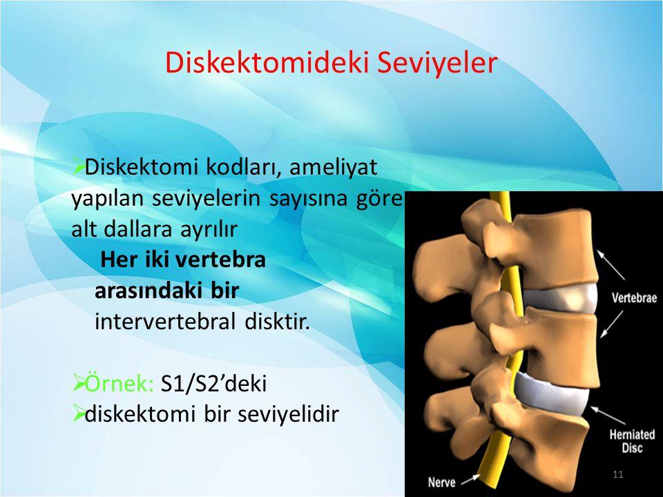 Diskektomideki Seviyeler  Diskektomi kodları, ameliyat yapılan seviyelerin sayısına göre alt dallara ayrılır Her iki vertebra arasındaki bir intervertebral disktir.