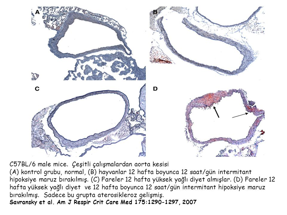 C57BL/6 male mice.