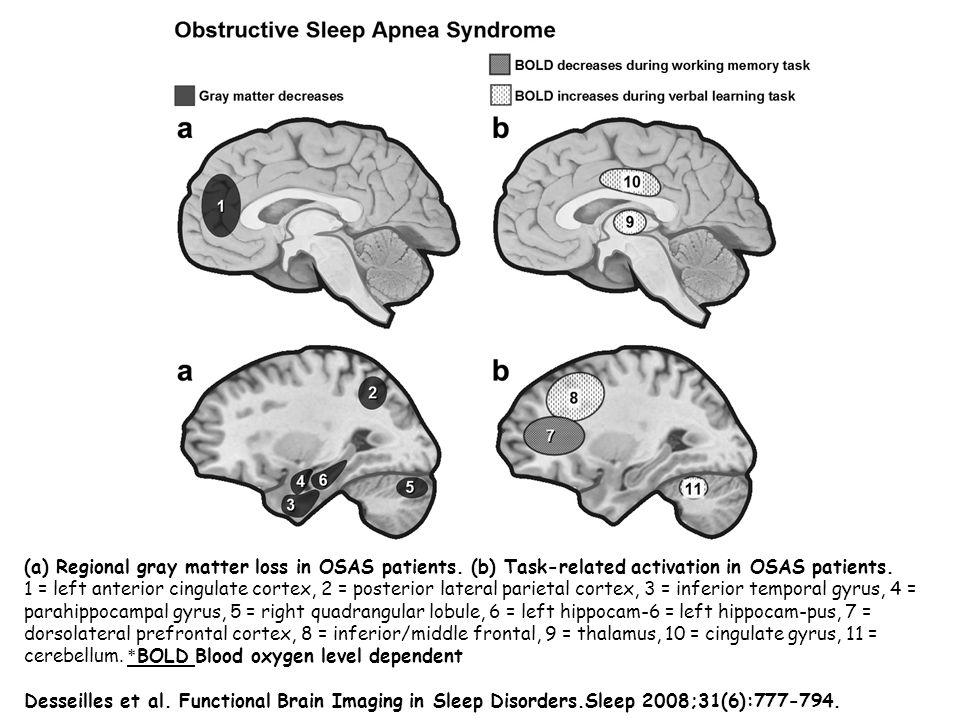 Uyku ve Serebral Kan Akımı o Uykuya Bağlı Solunumsal Hastalığında(UBSH) bilinen risk faktörleriyle birlikte bağımsız inme riski çok ciddi oranda artmaktadır.