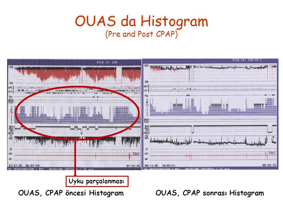 OUAS, CPAP öncesi HistogramOUAS, CPAP sonrası Histogram OUAS da Histogram (Pre and Post CPAP) Uyku parçalanması