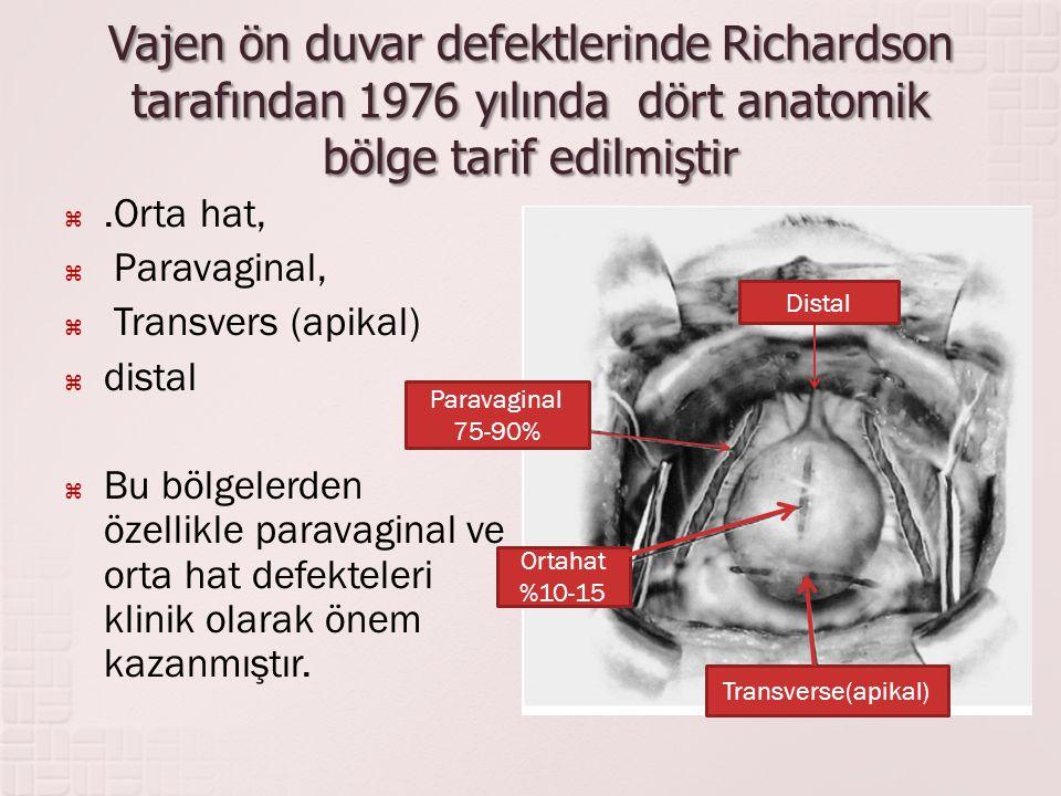 Vajen ön duvar defektlerinde Richardson tarafından 1976 yılında dört anatomik bölge tarif edilmiştir .Orta hat,  Paravaginal,  Transvers (apikal) 