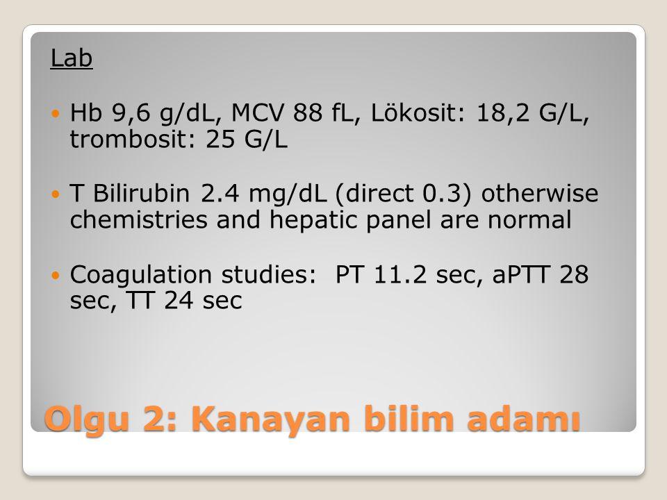 Lab Hb 9,6 g/dL, MCV 88 fL, Lökosit: 18,2 G/L, trombosit: 25 G/L T Bilirubin 2.4 mg/dL (direct 0.3) otherwise chemistries and hepatic panel are normal