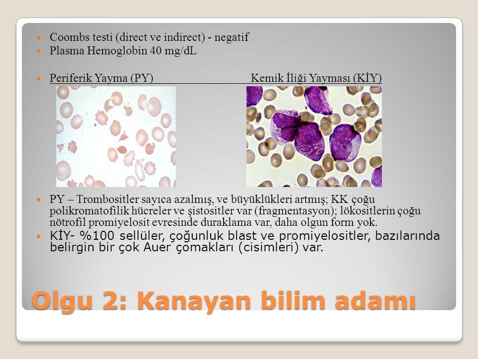 Coombs testi (direct ve indirect) - negatif Plasma Hemoglobin 40 mg/dL Periferik Yayma (PY)Kemik İliği Yayması (KİY) PY – Trombositler sayıca azalmış,