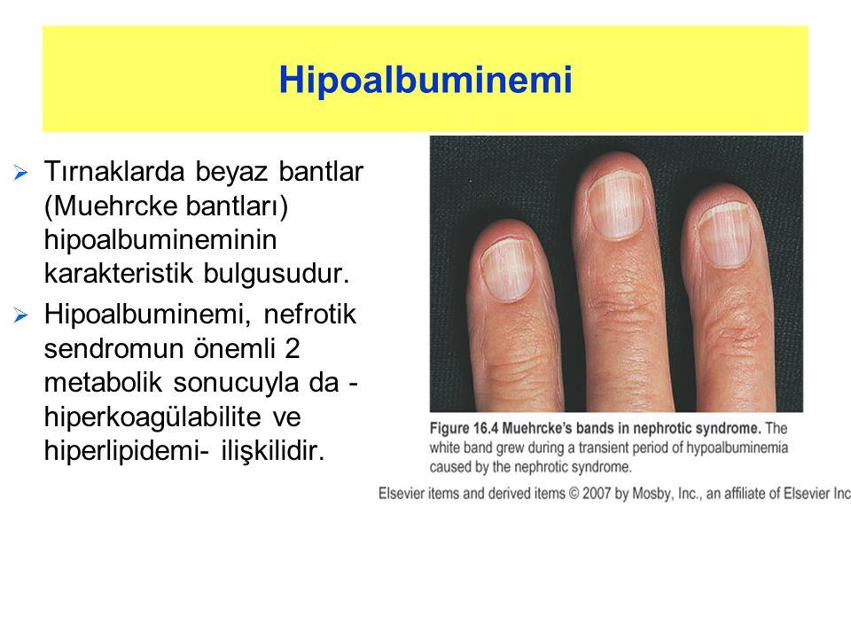 Hipoalbuminemi  Tırnaklarda beyaz bantlar (Muehrcke bantları) hipoalbumineminin karakteristik bulgusudur.  Hipoalbuminemi, nefrotik sendromun önemli