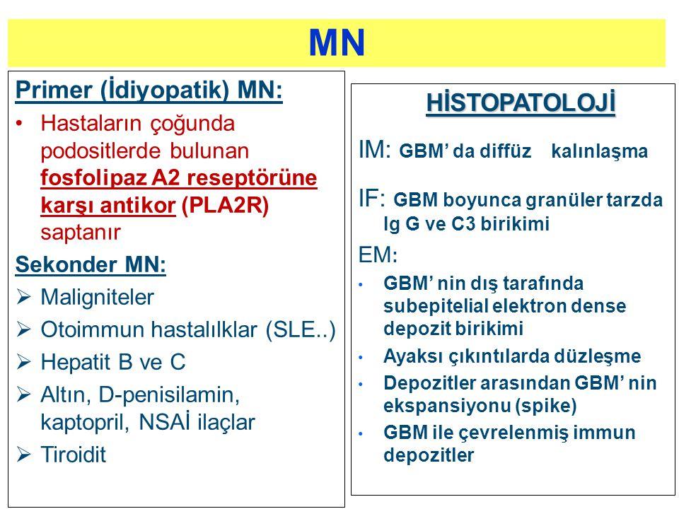 Primer (İdiyopatik) MN: Hastaların çoğunda podositlerde bulunan fosfolipaz A2 reseptörüne karşı antikor (PLA2R) saptanır Sekonder MN:  Maligniteler 