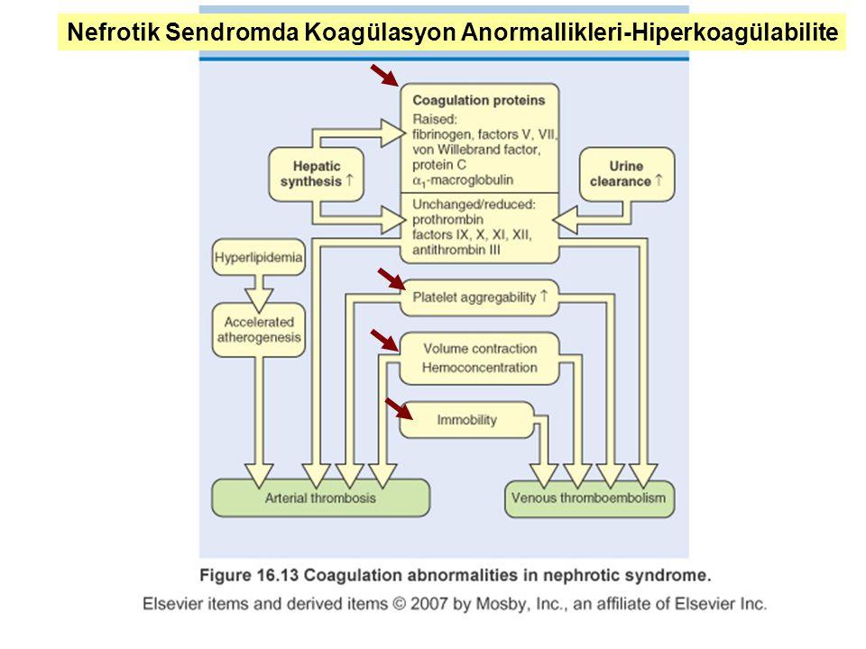 Nefrotik Sendromda Koagülasyon Anormallikleri-Hiperkoagülabilite