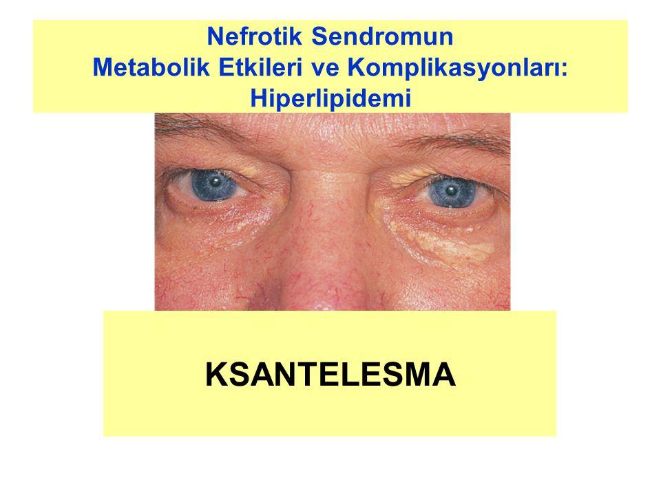 Nefrotik Sendromun Metabolik Etkileri ve Komplikasyonları: Hiperlipidemi KSANTELESMA
