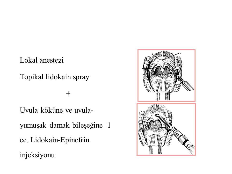 Lokal anestezi Topikal lidokain spray + Uvula köküne ve uvula- yumuşak damak bileşeğine 1 cc.