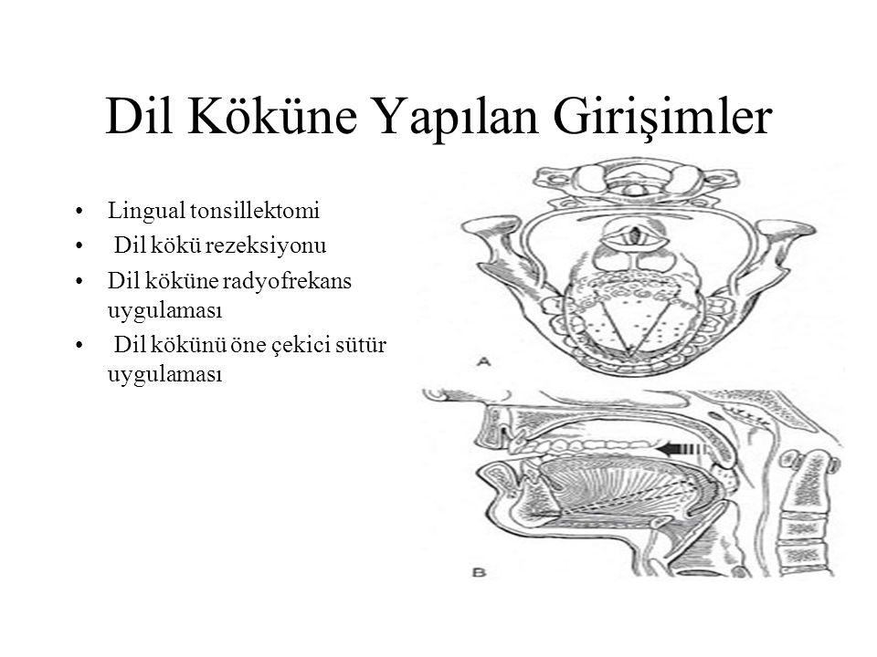 Dil Köküne Yapılan Girişimler Lingual tonsillektomi Dil kökü rezeksiyonu Dil köküne radyofrekans uygulaması Dil kökünü öne çekici sütür uygulaması
