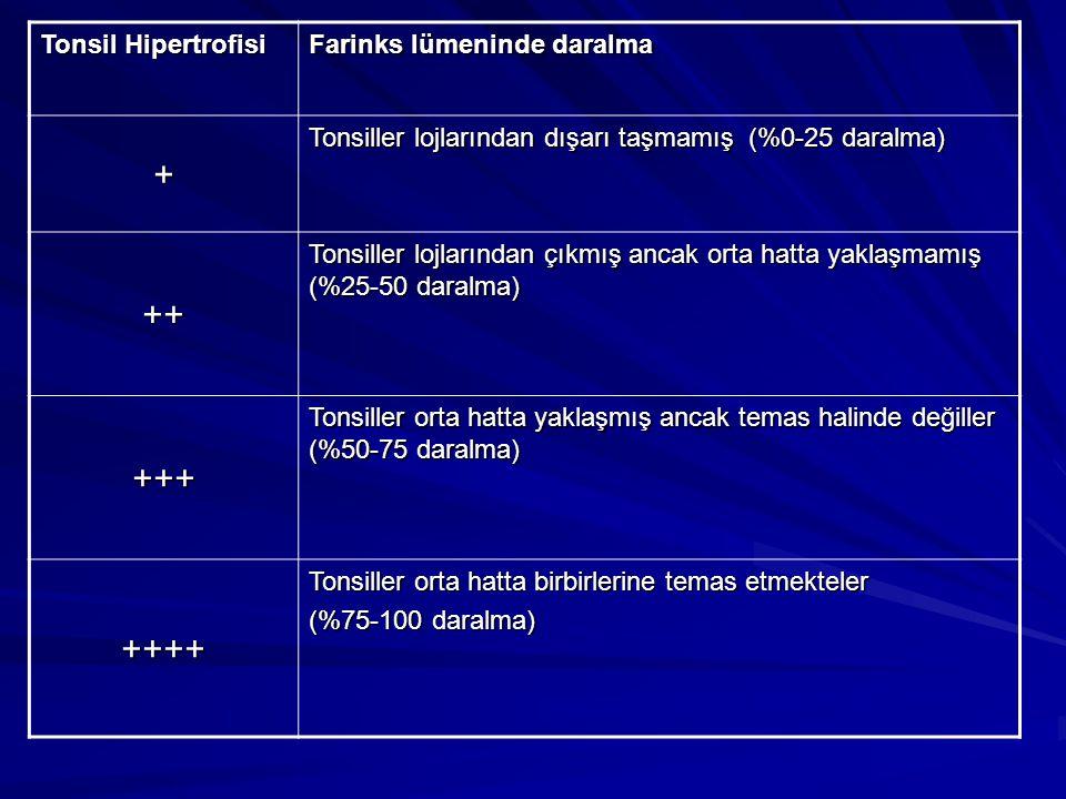 Tonsil Hipertrofisi Farinks lümeninde daralma + Tonsiller lojlarından dışarı taşmamış (%0-25 daralma) ++ Tonsiller lojlarından çıkmış ancak orta hatta yaklaşmamış (%25-50 daralma) +++ Tonsiller orta hatta yaklaşmış ancak temas halinde değiller (%50-75 daralma) ++++ Tonsiller orta hatta birbirlerine temas etmekteler (%75-100 daralma)