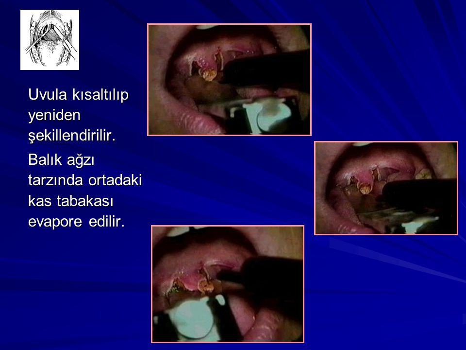Uvula kısaltılıp yeniden şekillendirilir. Balık ağzı tarzında ortadaki kas tabakası evapore edilir.