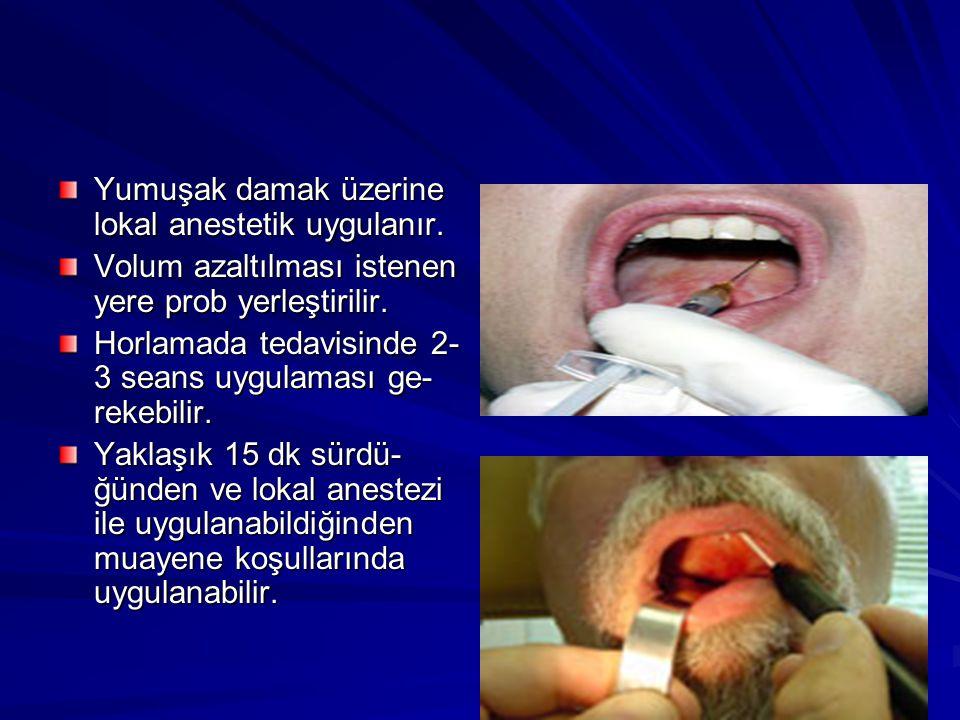 Yumuşak damak üzerine lokal anestetik uygulanır.Volum azaltılması istenen yere prob yerleştirilir.