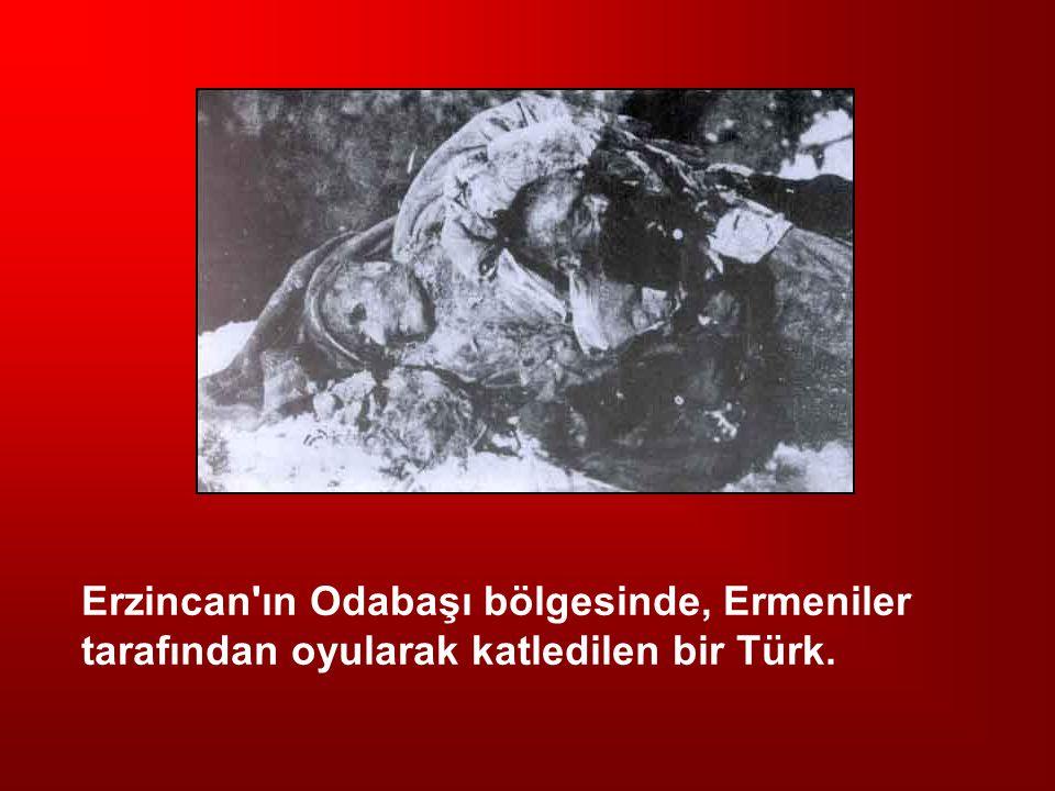 Erzincan'ın Odabaşı bölgesinde, Ermeniler tarafından oyularak katledilen bir Türk.