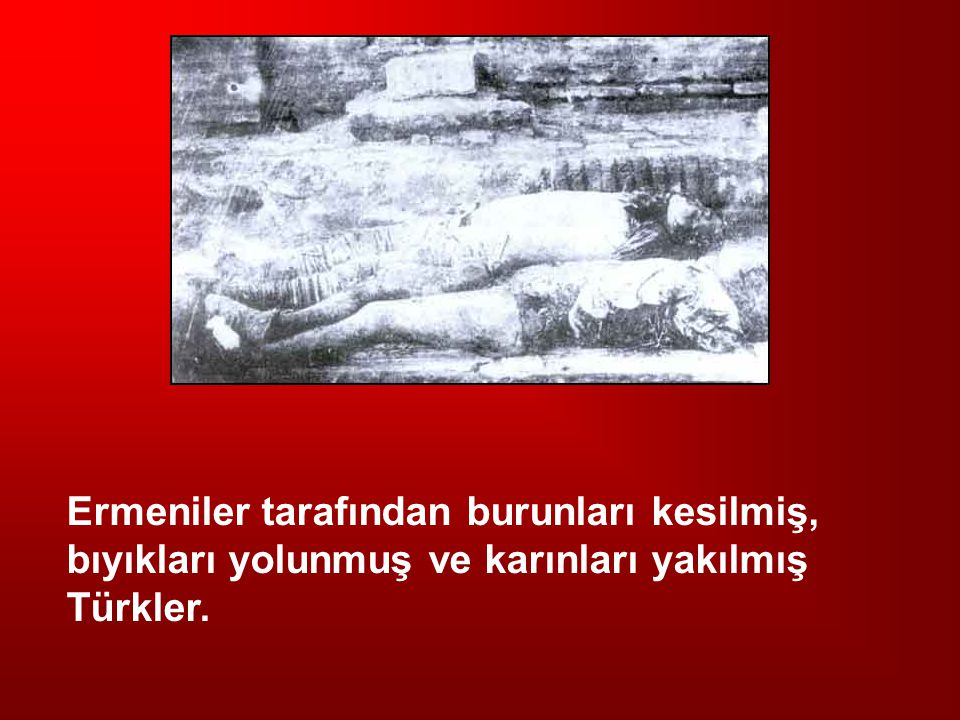 Ermeniler tarafından burunları kesilmiş, bıyıkları yolunmuş ve karınları yakılmış Türkler.