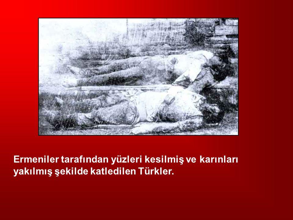 Ermeniler tarafından yüzleri kesilmiş ve karınları yakılmış şekilde katledilen Türkler.