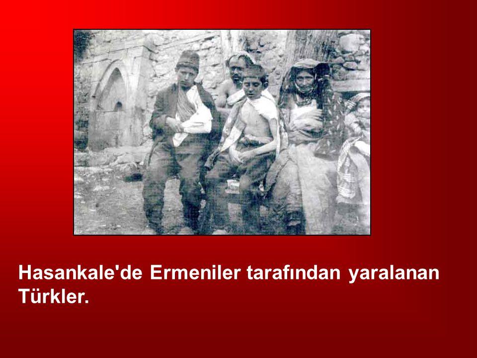 Hasankale'de Ermeniler tarafından yaralanan Türkler.