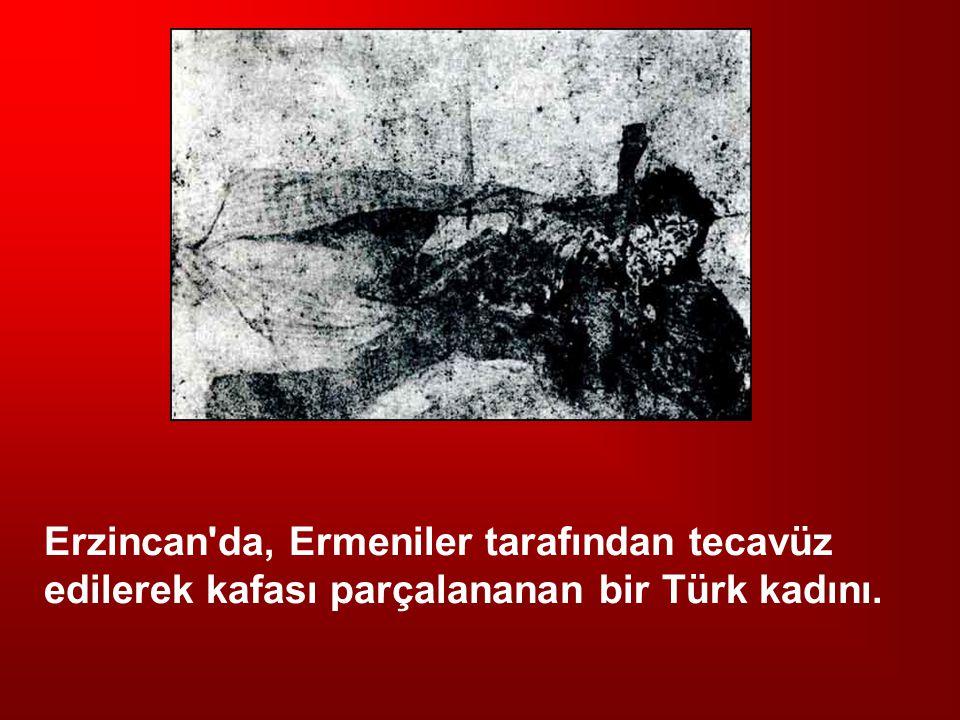 Erzincan'da, Ermeniler tarafından tecavüz edilerek kafası parçalananan bir Türk kadını.