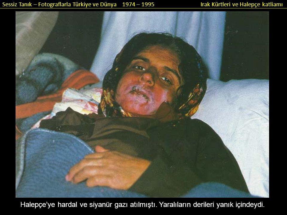 Halepçe'ye hardal ve siyanür gazı atılmıştı. Yaralıların derileri yanık içindeydi.