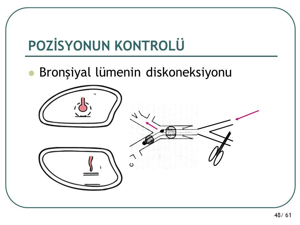 48/ 61 POZİSYONUN KONTROLÜ Bronşiyal lümenin diskoneksiyonu