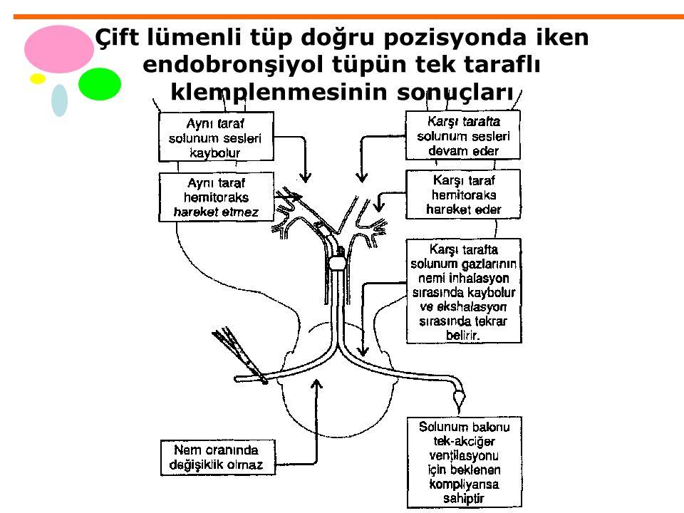 Çift lümenli tüp doğru pozisyonda iken endobronşiyol tüpün tek taraflı klemplenmesinin sonuçları