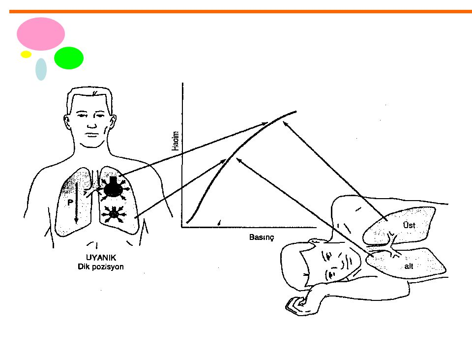 Çift Lümenli Tüp yerleşim sorunları Bazı hastalarda trakeal açıklık karina üzerinde –Bronşiyal lümenin sol üst - sol alt lob bronşunda olması mümkündür –Bronşiyal lümen klemplendiğinde sol loblardan sadece birinin kollabe olması –Eğer cerrahi işlem sağ toraksta ise, trakeal lümen klemplendiğinde, sadece sol üst veya sol alt lob ventile olacaktır; genellikle hipoksi hızlı gelişir.