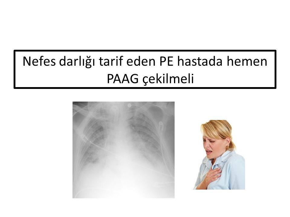 Nefes darlığı tarif eden PE hastada hemen PAAG çekilmeli