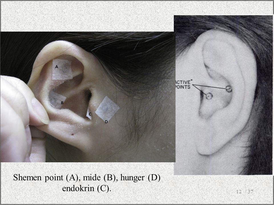 / 3712 Shemen point (A), mide (B), hunger (D) endokrin (C).