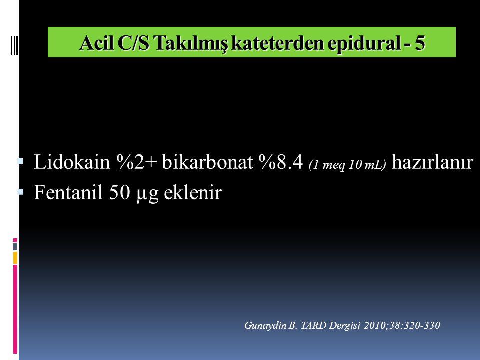  Lidokain %2+ bikarbonat %8.4 (1 meq 10 mL) hazırlanır  Fentanil 50 µg eklenir Acil C/S Takılmış kateterden epidural - 5 Gunaydin B.