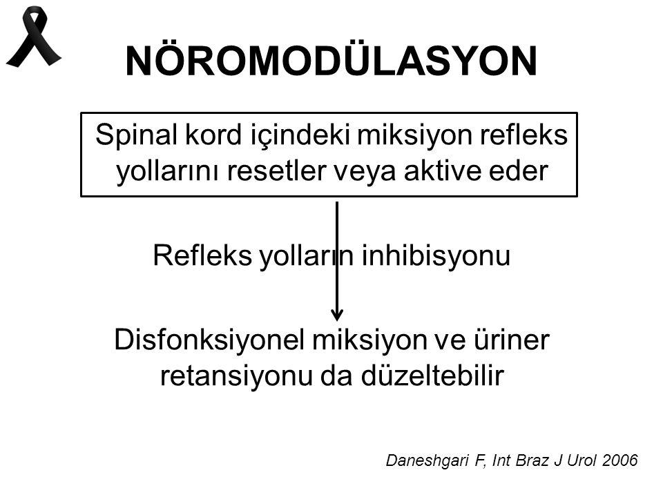 NÖROMODÜLASYON Spinal kord içindeki miksiyon refleks yollarını resetler veya aktive eder Refleks yolların inhibisyonu Disfonksiyonel miksiyon ve üriner retansiyonu da düzeltebilir Daneshgari F, Int Braz J Urol 2006