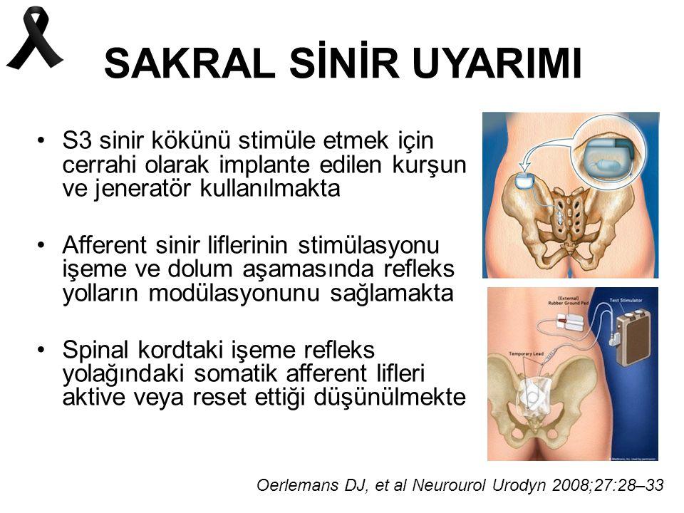 SAKRAL SİNİR UYARIMI S3 sinir kökünü stimüle etmek için cerrahi olarak implante edilen kurşun ve jeneratör kullanılmakta Afferent sinir liflerinin stimülasyonu işeme ve dolum aşamasında refleks yolların modülasyonunu sağlamakta Spinal kordtaki işeme refleks yolağındaki somatik afferent lifleri aktive veya reset ettiği düşünülmekte Oerlemans DJ, et al Neurourol Urodyn 2008;27:28–33