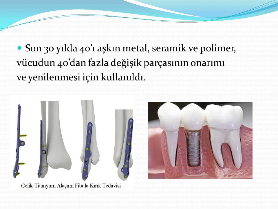 Son 30 yılda 40'ı aşkın metal, seramik ve polimer, vücudun 40'dan fazla değişik parçasının onarımı ve yenilenmesi için kullanıldı.