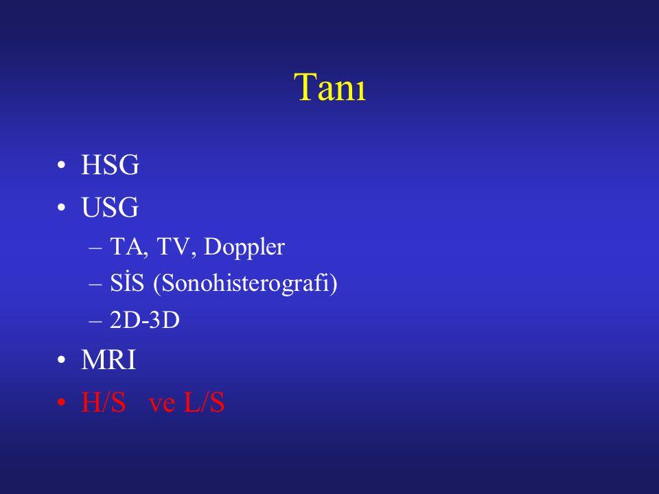 Tanı HSG USG –TA, TV, Doppler –SİS (Sonohisterografi) –2D-3D MRI H/S ve L/S