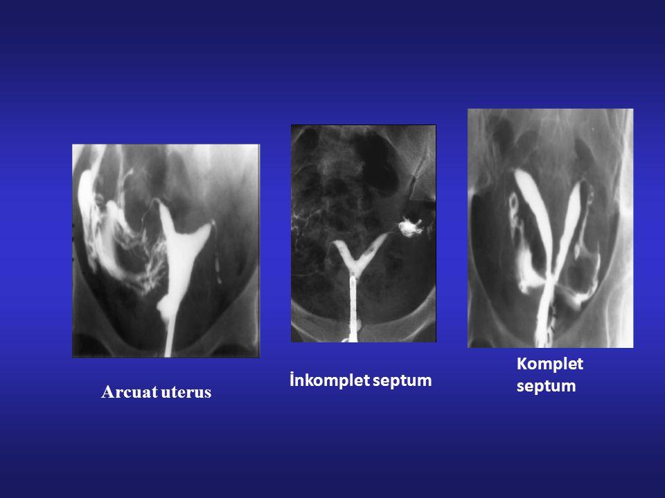İnkomplet septum Komplet septum Arcuat uterus