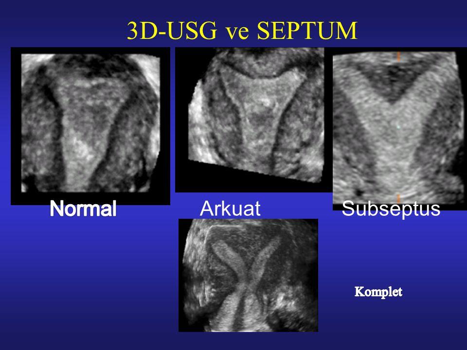 3D-USG ve SEPTUM