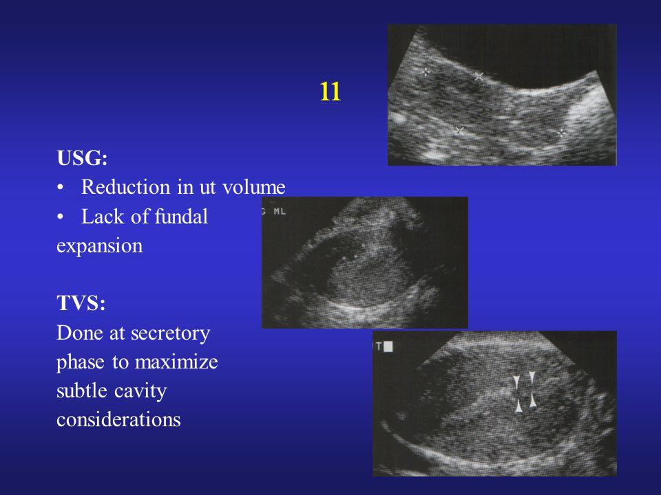 ıı USG: Reduction in ut volume Lack of fundal expansion TVS: Done at secretory phase to maximize subtle cavity considerations