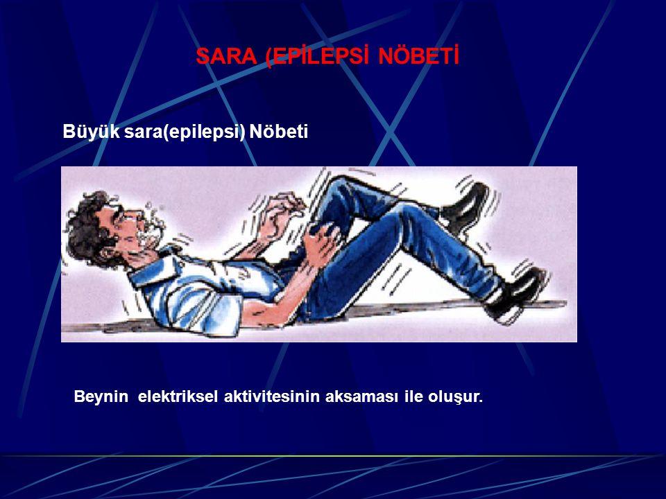SARA (EPİLEPSİ NÖBETİ Büyük sara(epilepsi) Nöbeti Beynin elektriksel aktivitesinin aksaması ile oluşur.