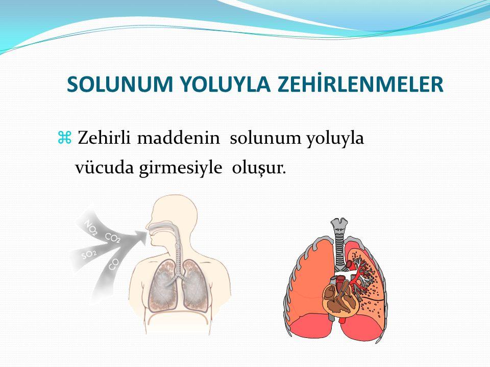  Zehirli maddenin solunum yoluyla vücuda girmesiyle oluşur.