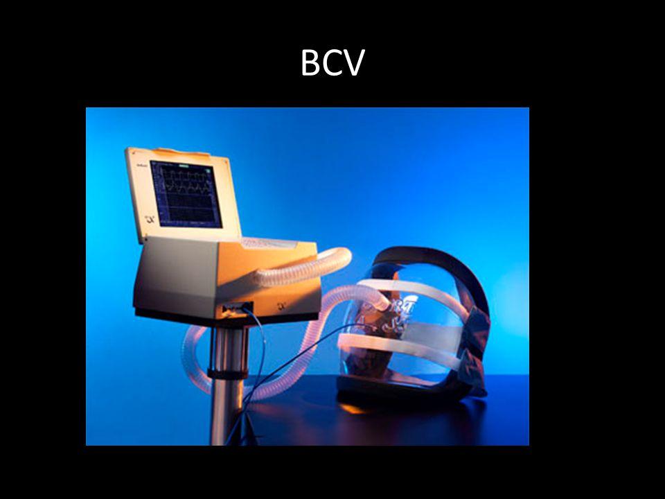 PİK AKIM HIZI Ventilatörün sağladığı max akım hızı 60-80 L/dk veya daha fazla Düşük akım hızı: dispne, düşük Vt Yüksek akım hızları: Ppik artar.