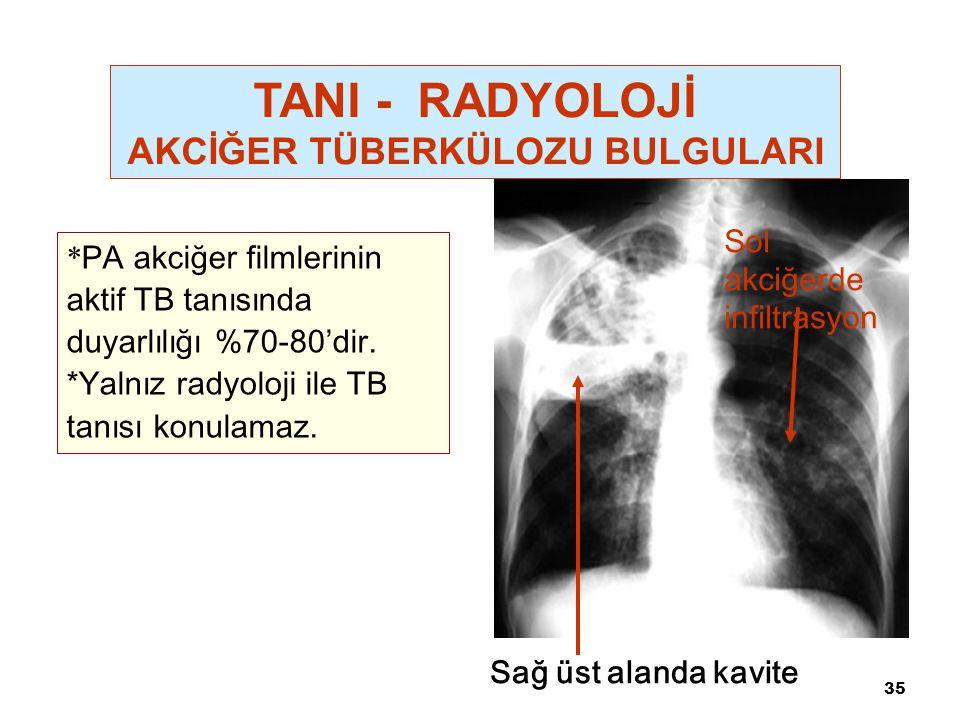 35 Sağ üst alanda kavite Sol akciğerde infiltrasyon * PA akciğer filmlerinin aktif TB tanısında duyarlılığı %70-80'dir. *Yalnız radyoloji ile TB tanıs