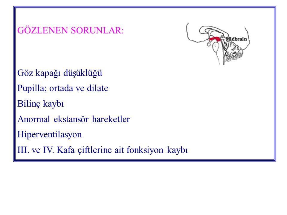 GÖZLENEN SORUNLAR: Göz kapağı düşüklüğü Pupilla; ortada ve dilate Bilinç kaybı Anormal ekstansör hareketler Hiperventilasyon III.
