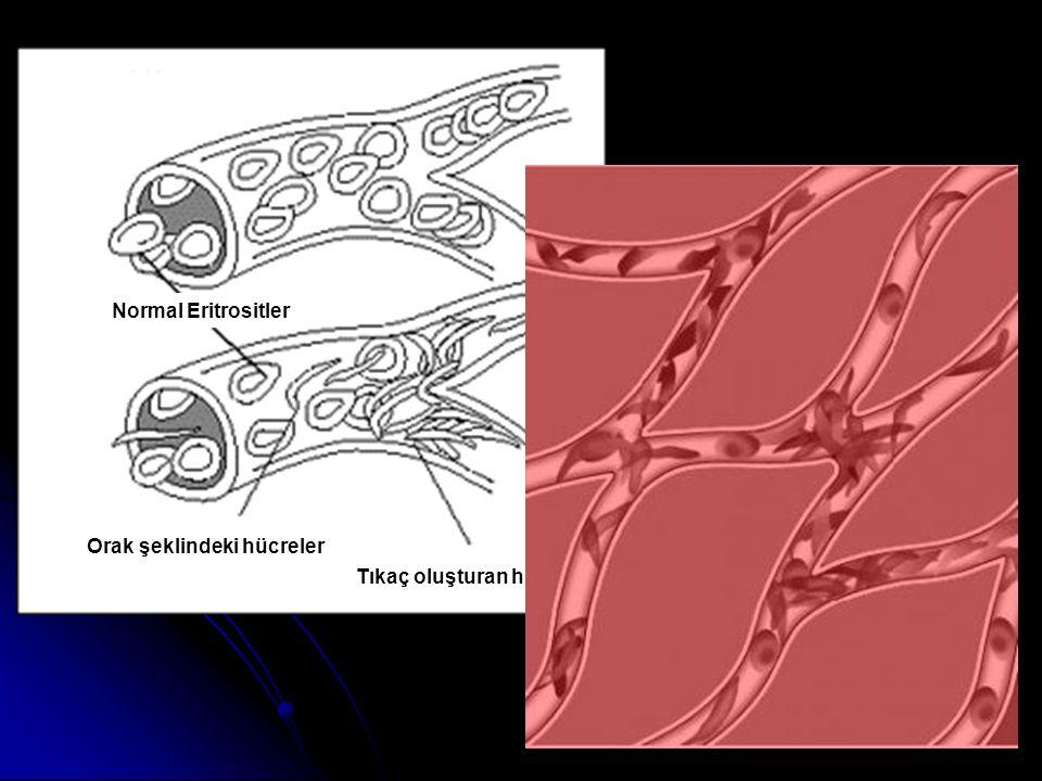 Normal Eritrositler Orak şeklindeki hücreler Tıkaç oluşturan hücreler