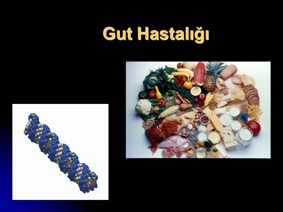 Gut Hastalığı