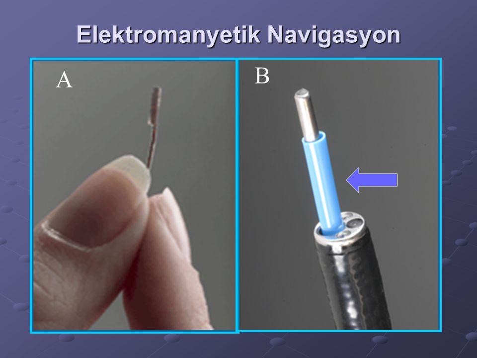 Elektromanyetik Navigasyon A B