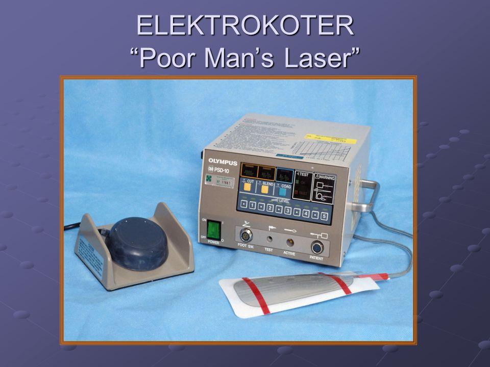 ELEKTROKOTER Poor Man's Laser